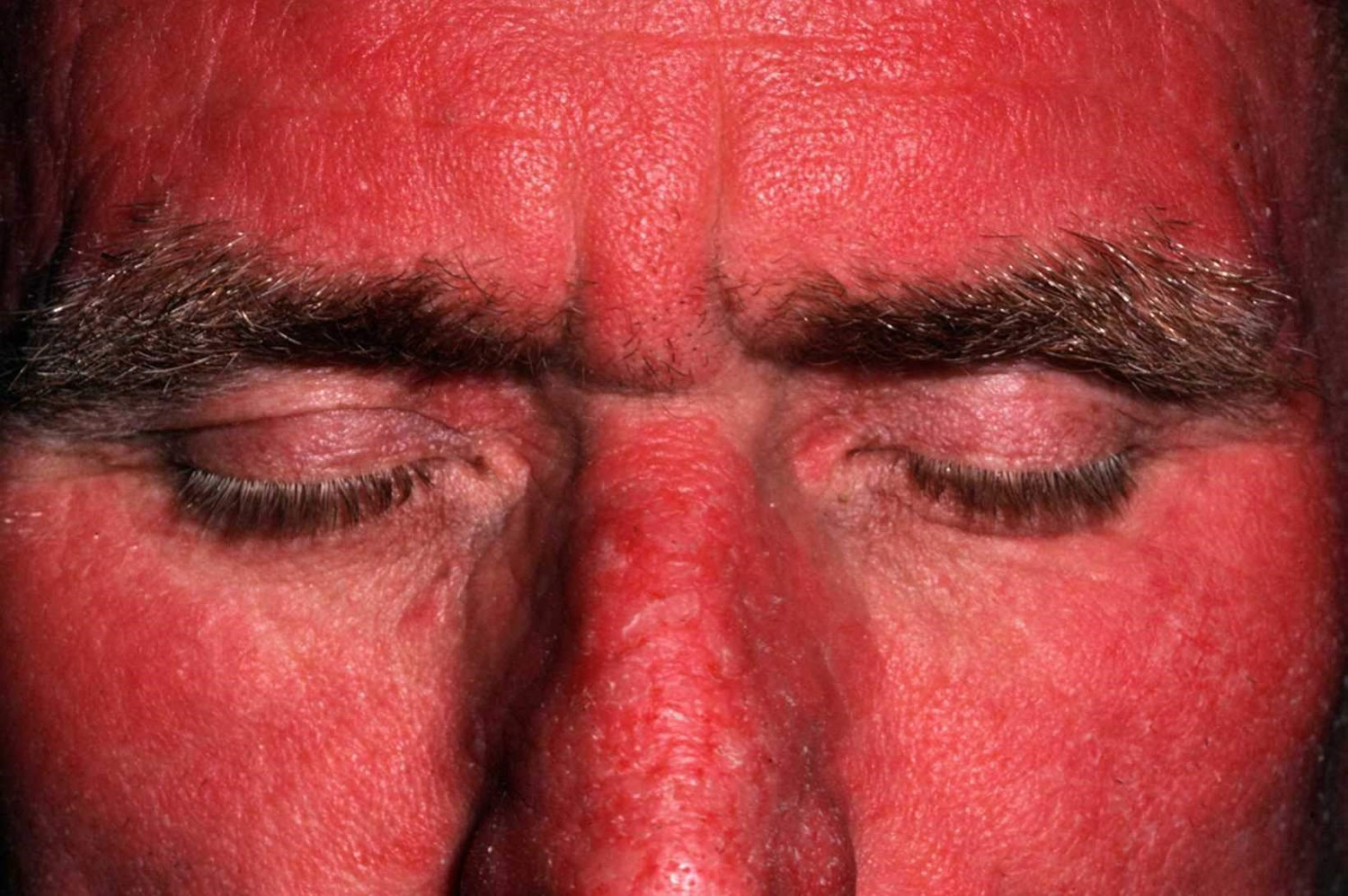 Polymorphic Light Eruption Causes Rash Treatment