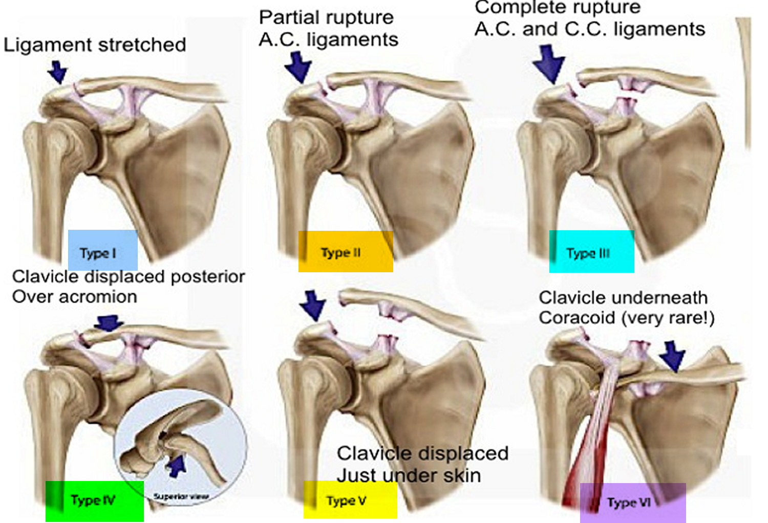Separated Shoulder - Causes, Symptoms, Exercises, Treatment