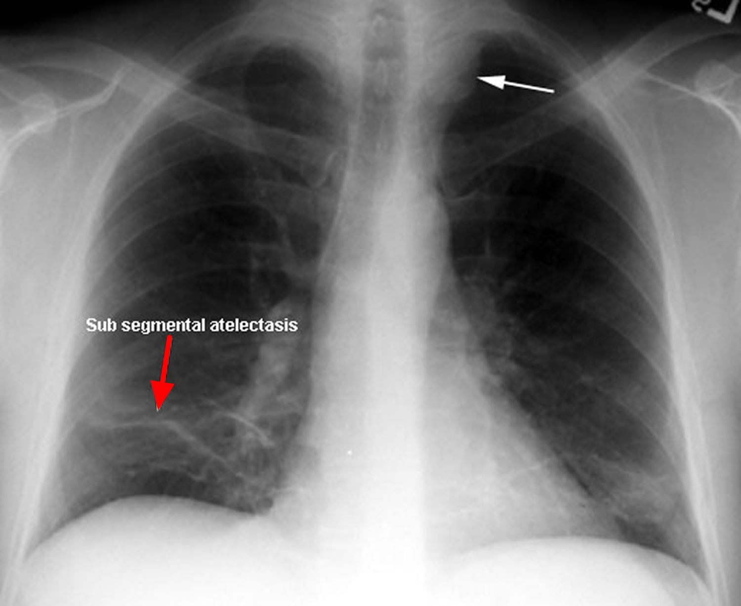 how to tell if you have a collapsed lung