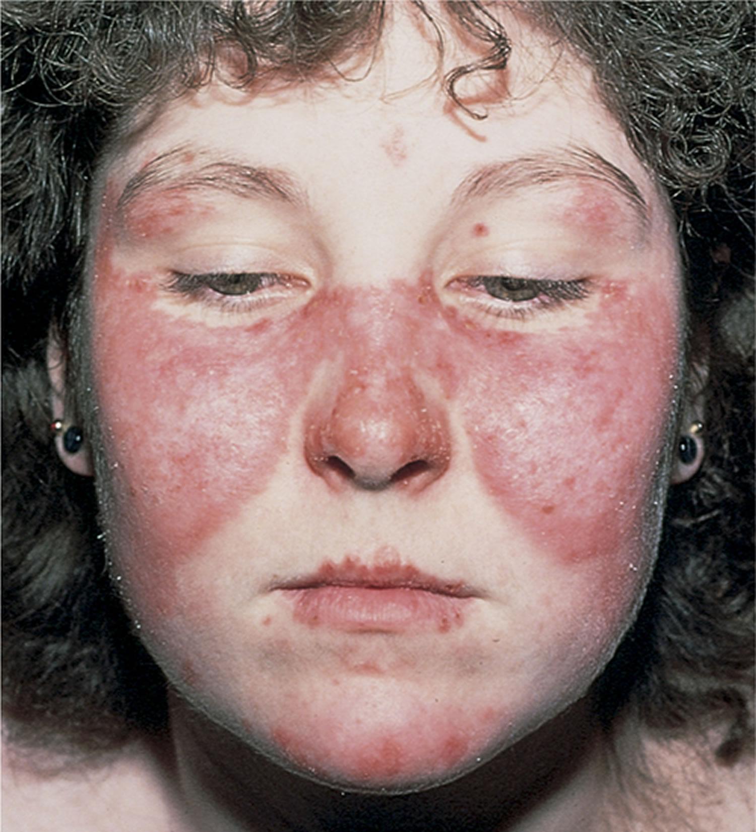 systemic lupus erythematosus butterfly rash