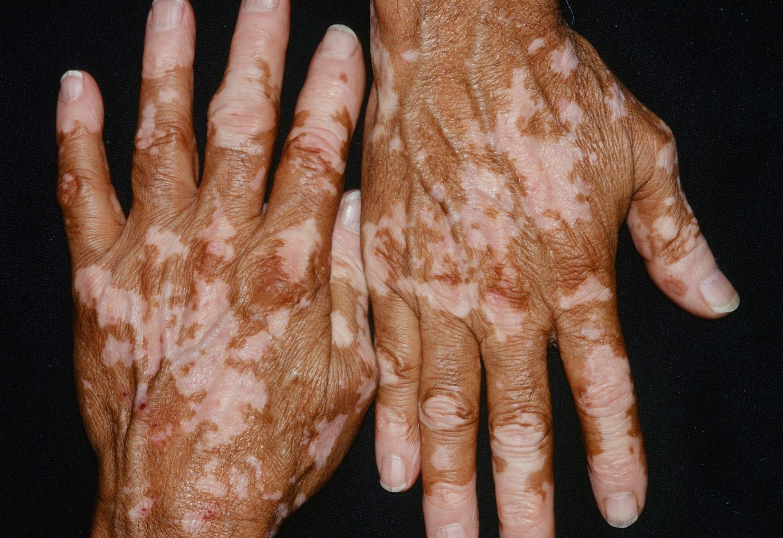 Vitiligo Causes Symptoms Vitiligo Skin Disease Treatment