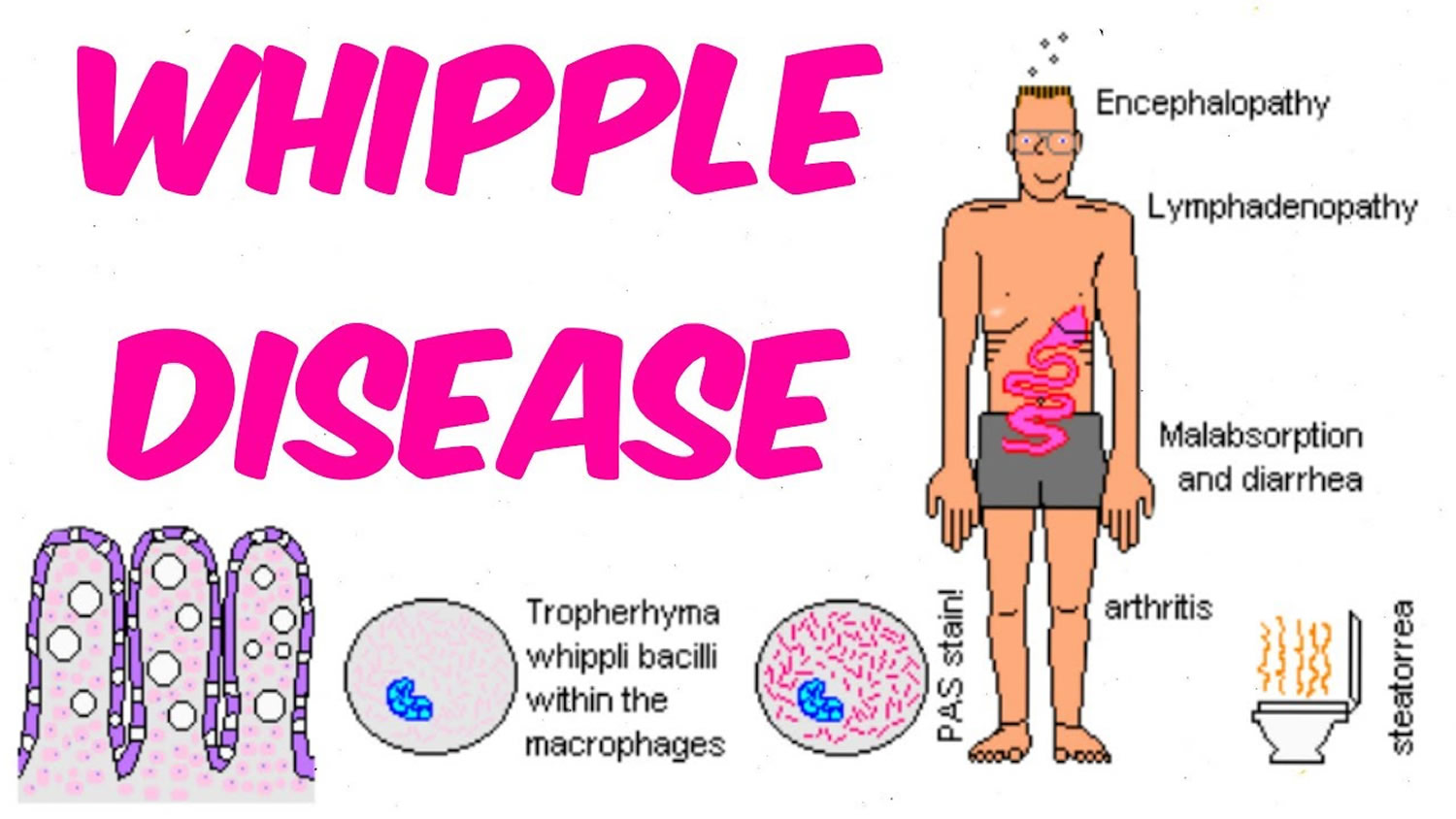 What Is Whipple's Disease