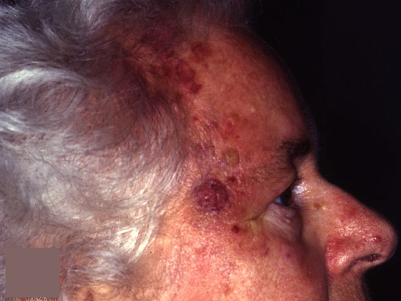 angiosarcoma scalp