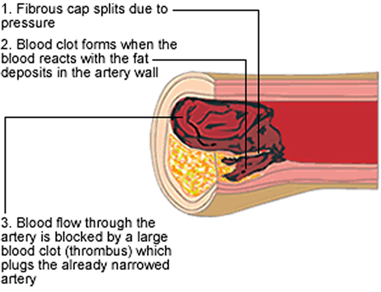Atherosclerosis development stage 3