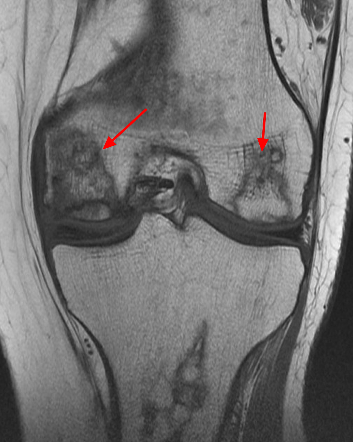 Avascular necrosis of knee
