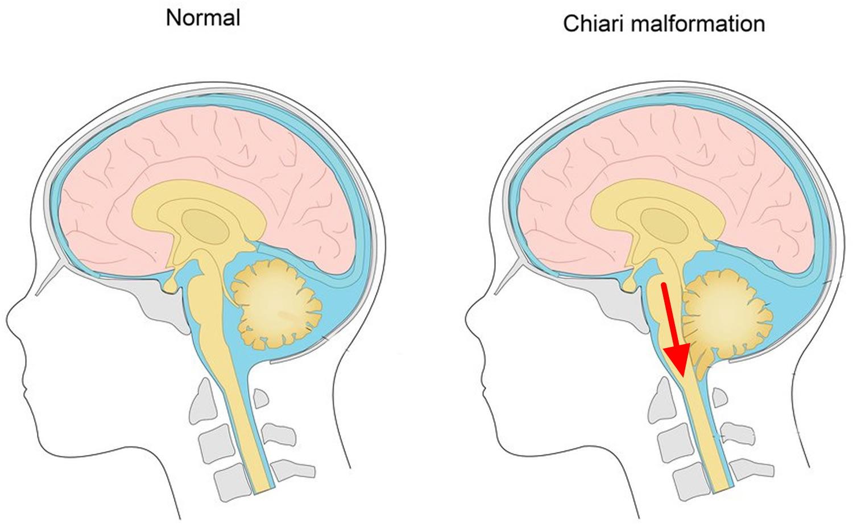 Chiari malformation syringomyelia