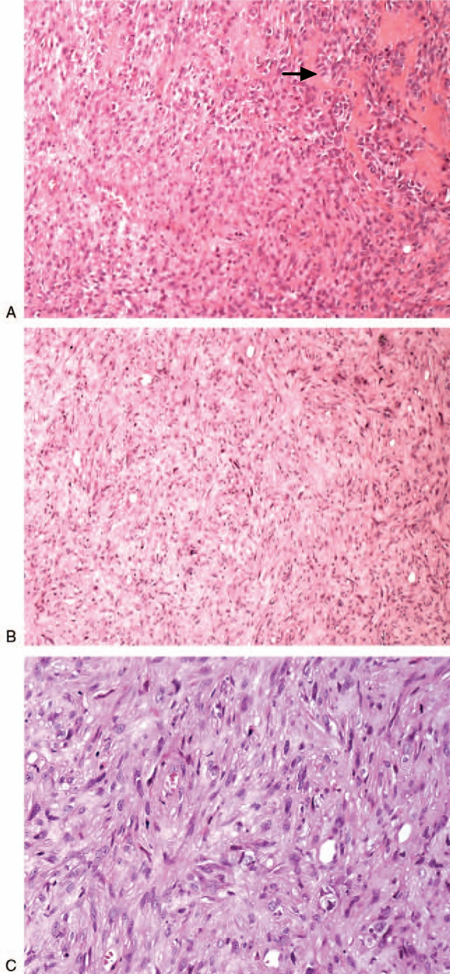 Epithelioid angiosarcoma malignant cells