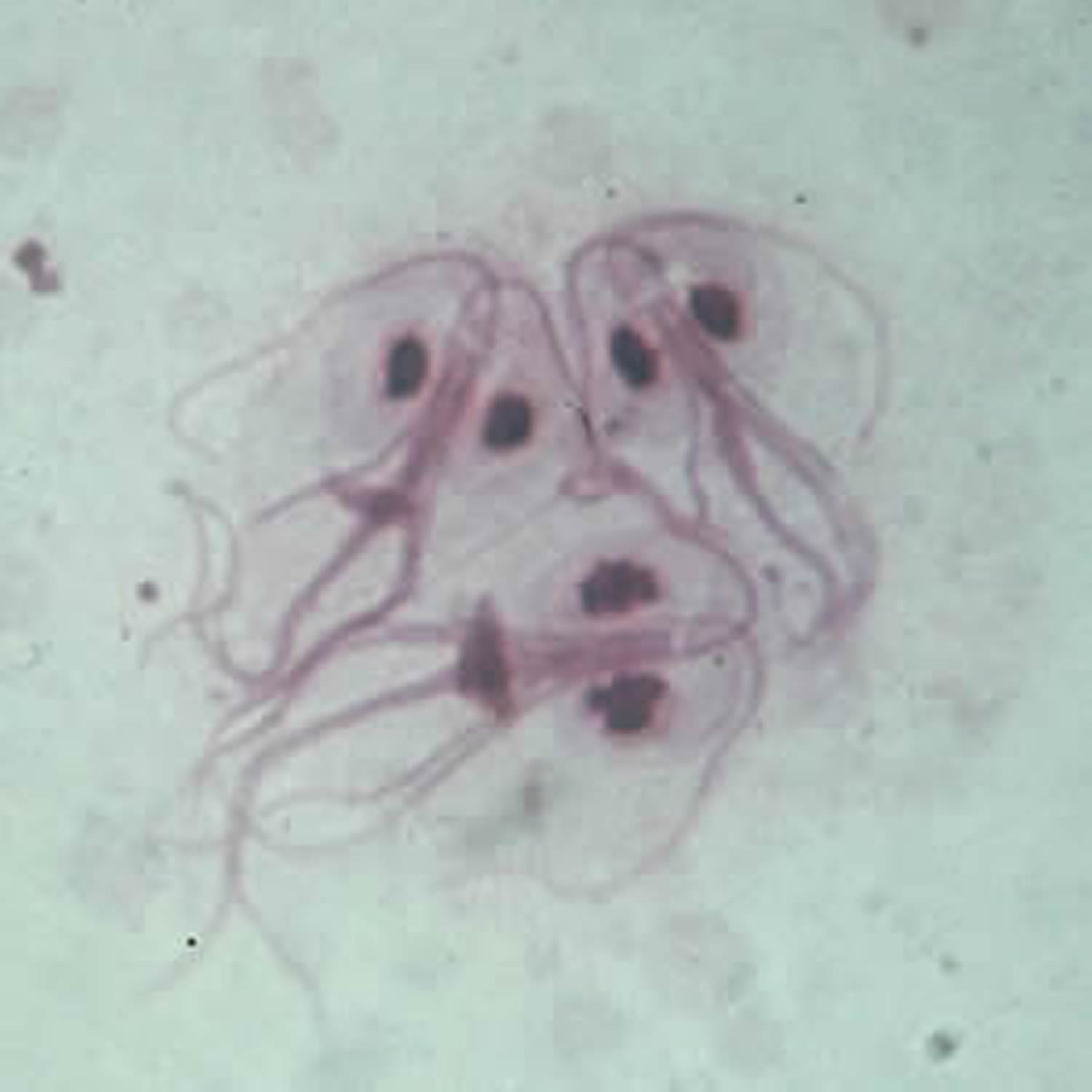 Giardiasis Causes Symptoms Prevention Diagnosis Treatment