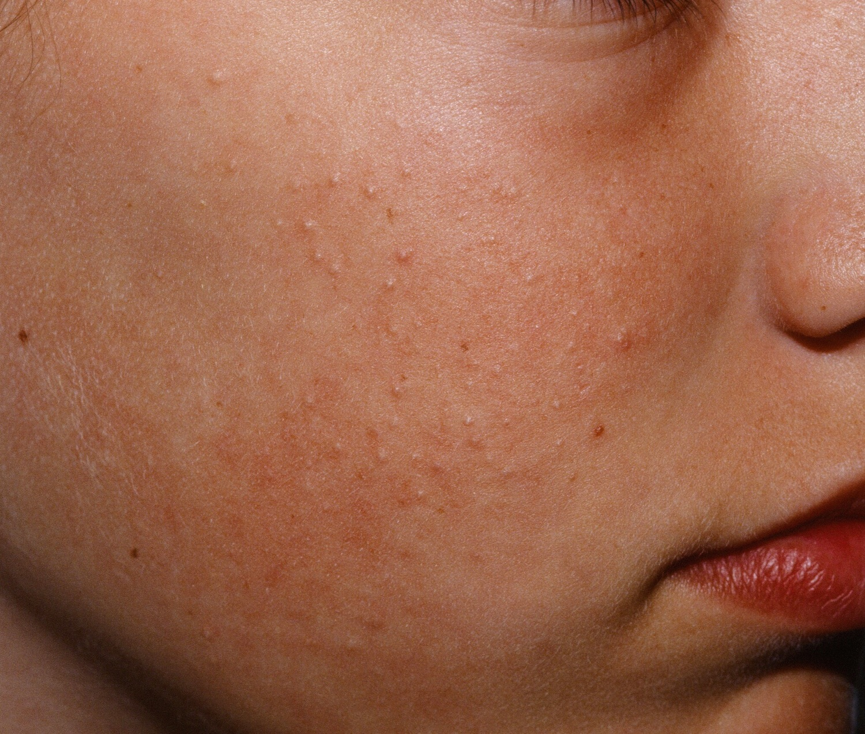 Keratosis Pilaris - Causes, Symptoms, How To Get Rid of It