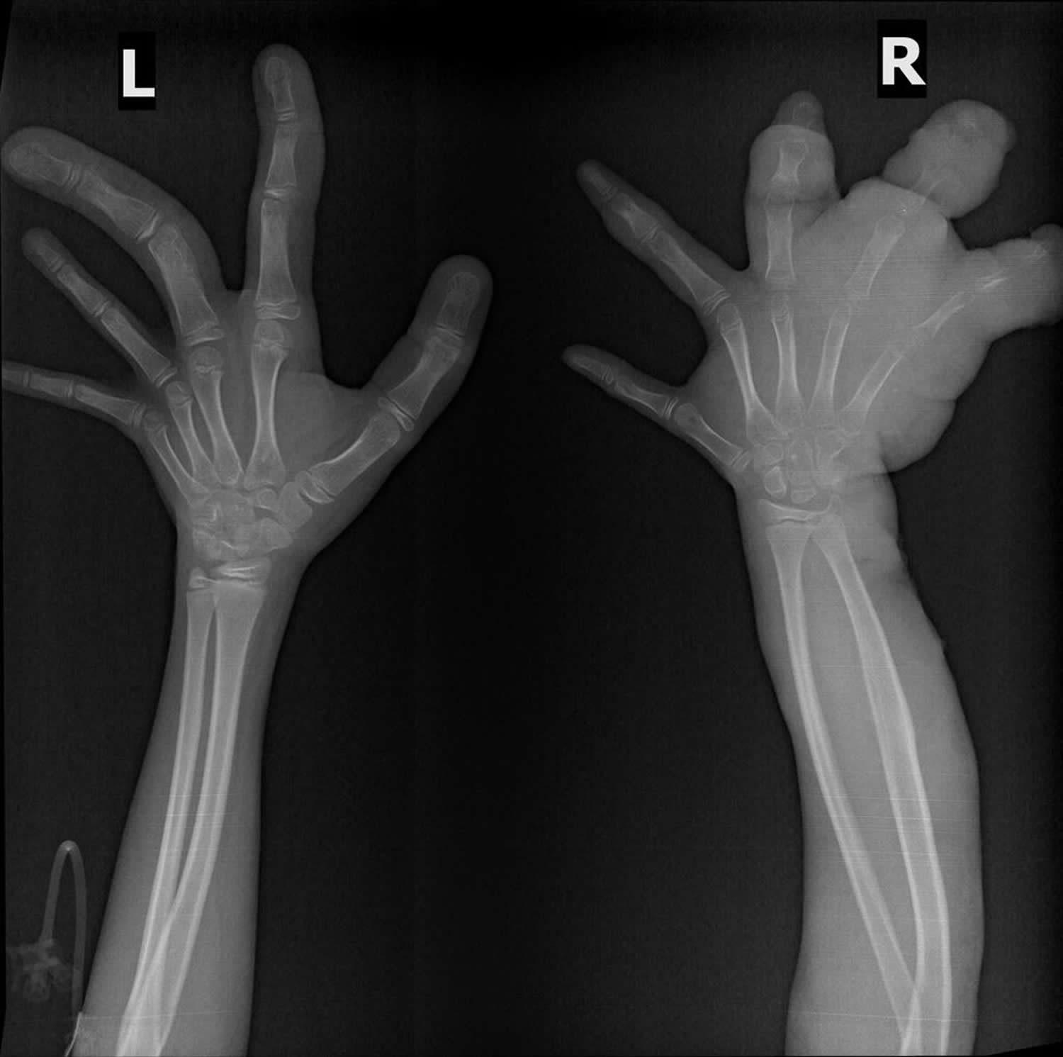Klippel-Trenaunay syndrome plain x-ray of both arms showing overgrowth of bone and soft tissue seen in the hands bilaterally
