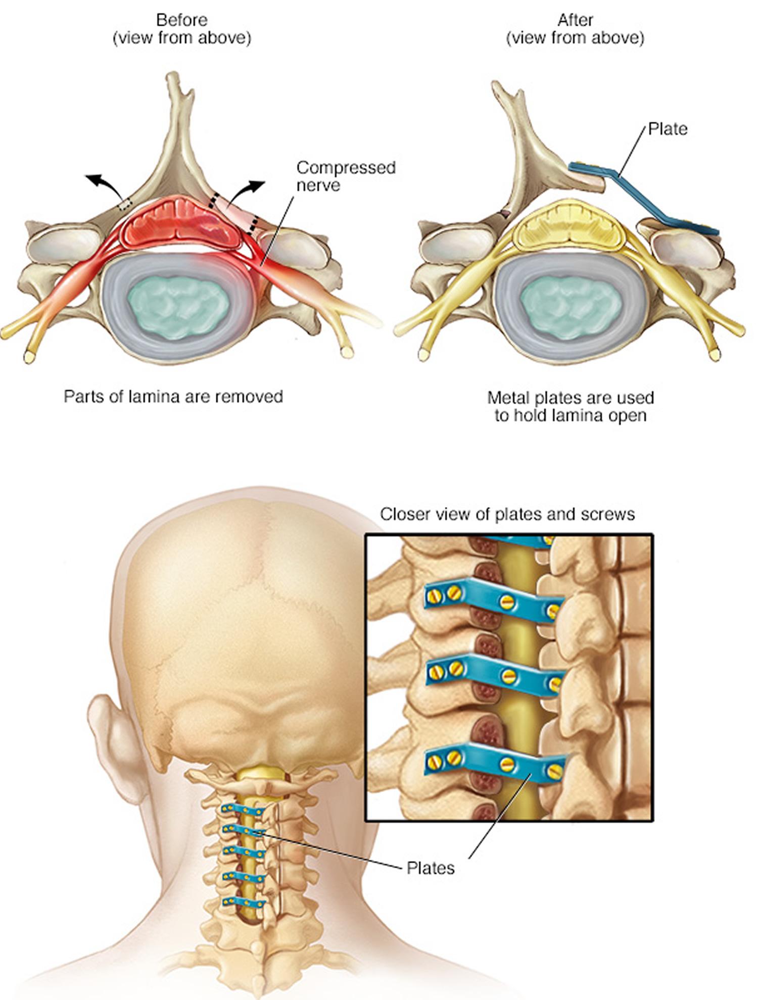 Laminoplasty