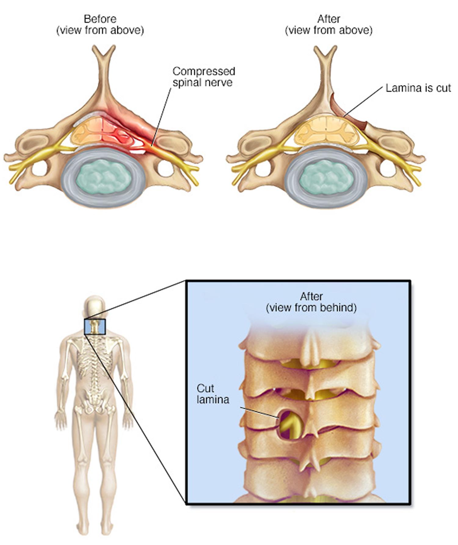 Laminotomy
