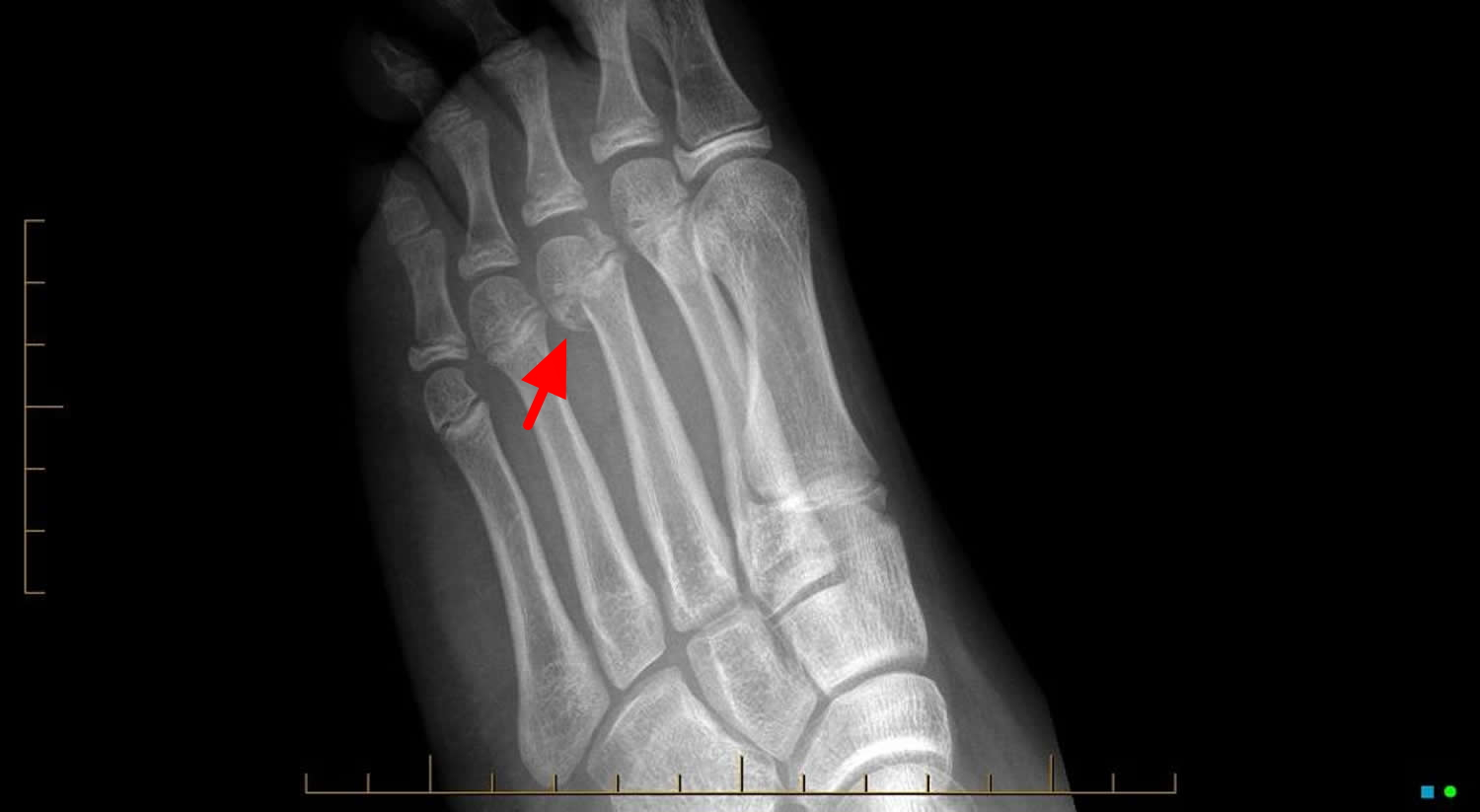 Metatarsal head growth plate fracture