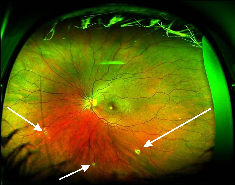 Ocular Histoplasmosis  Presumed Ocular Histoplasmosis