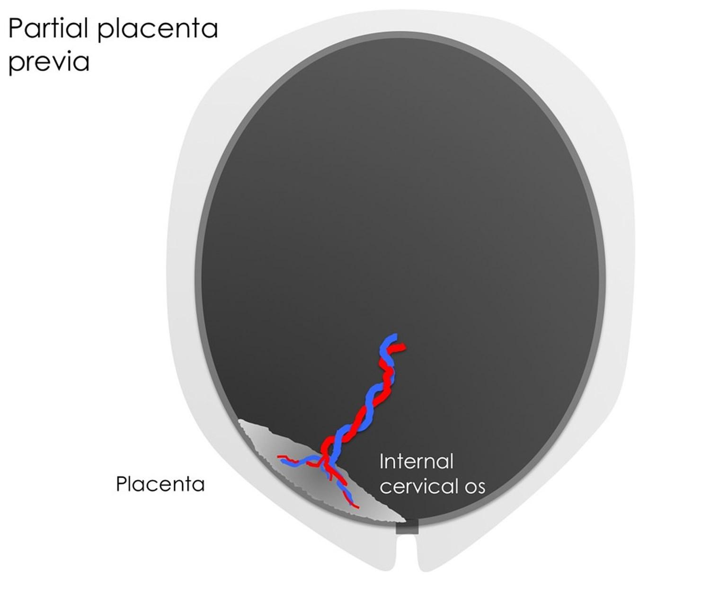 Placenta Previa Causes, Signs, Symptoms, Treatment