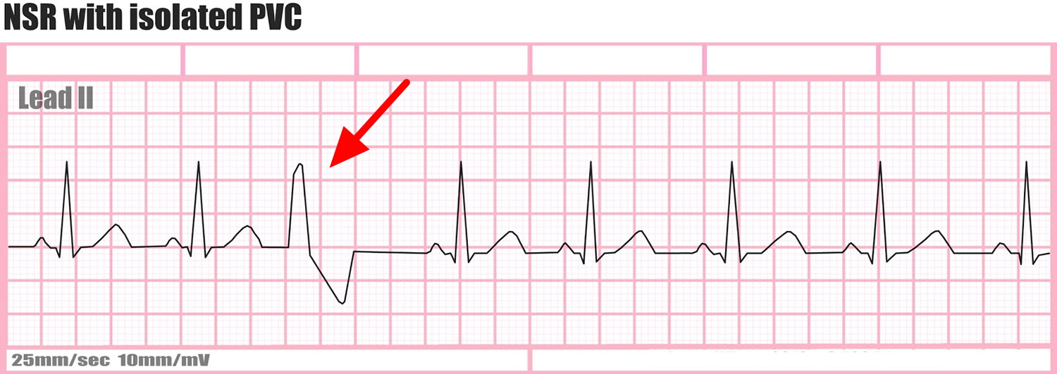 Premature Ventricular Contractions - Causes, Symptoms, Treatment
