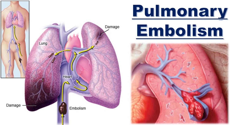 saddle pulmonary embolism