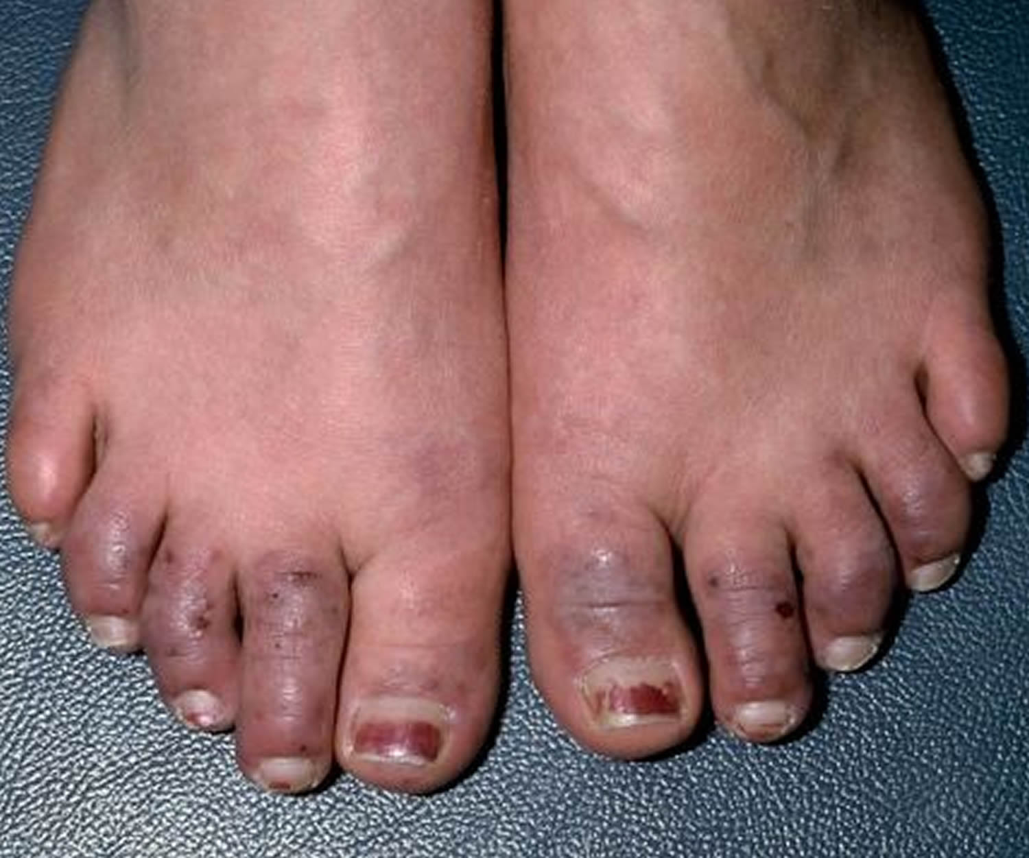 Raynaud's disease feet