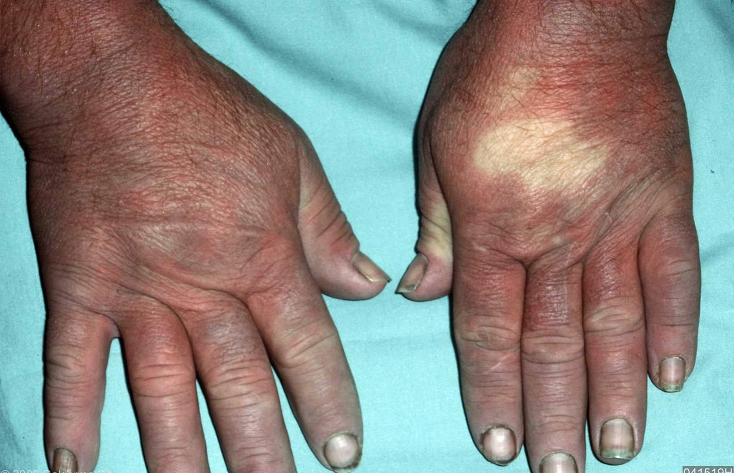 Raynaud's disease hands