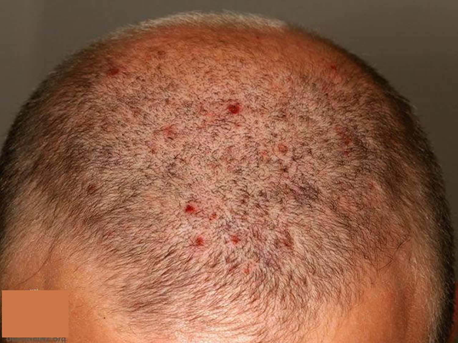 Folliculitis Causes Signs Symptoms How To Get Rid Of