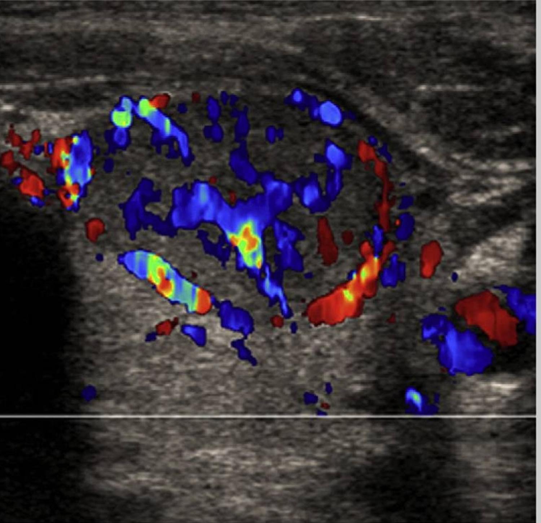 Thyroid nodule doppler ultrasound