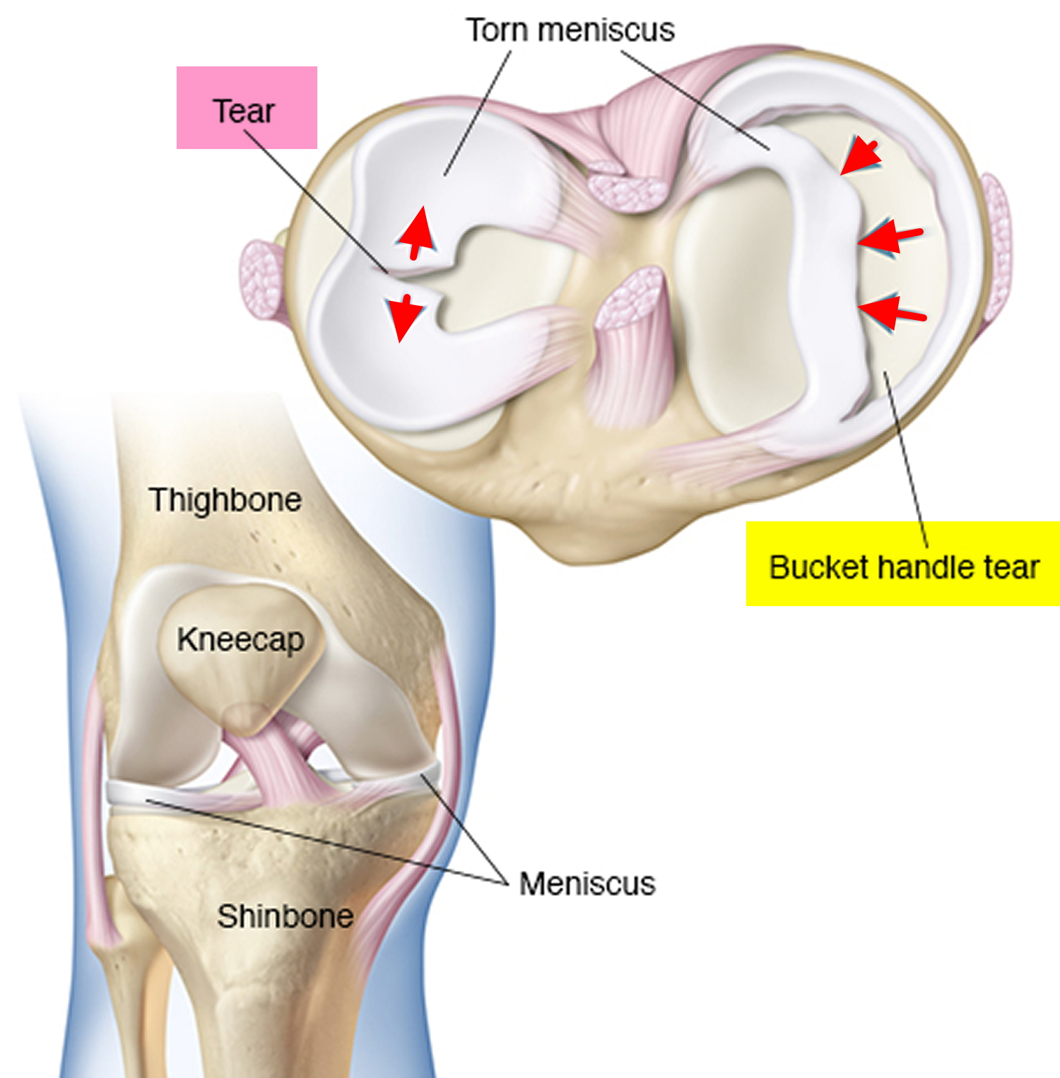 Knee meniscus: rupture, treatment, restoration of functionality 43