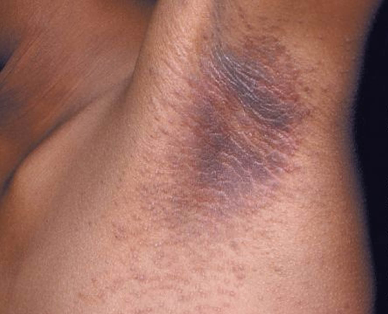 acanthosis nigricans armpit