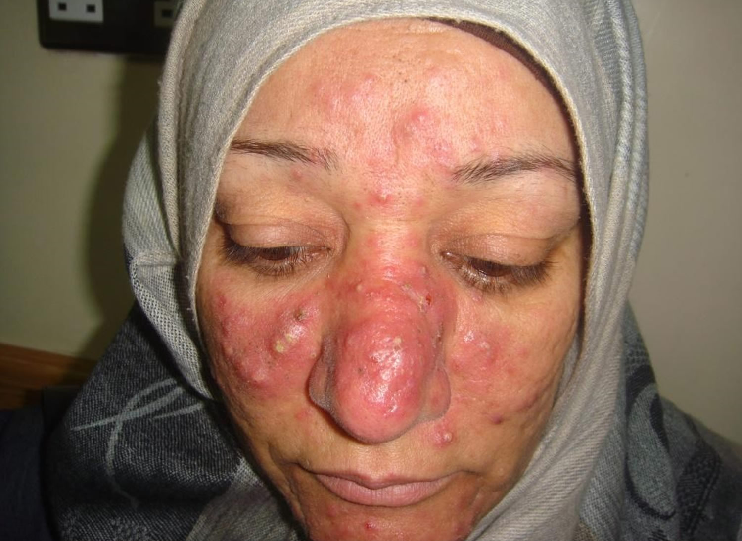 Forum on this topic: Does H. Pylori Cause Rosacea, does-h-pylori-cause-rosacea/