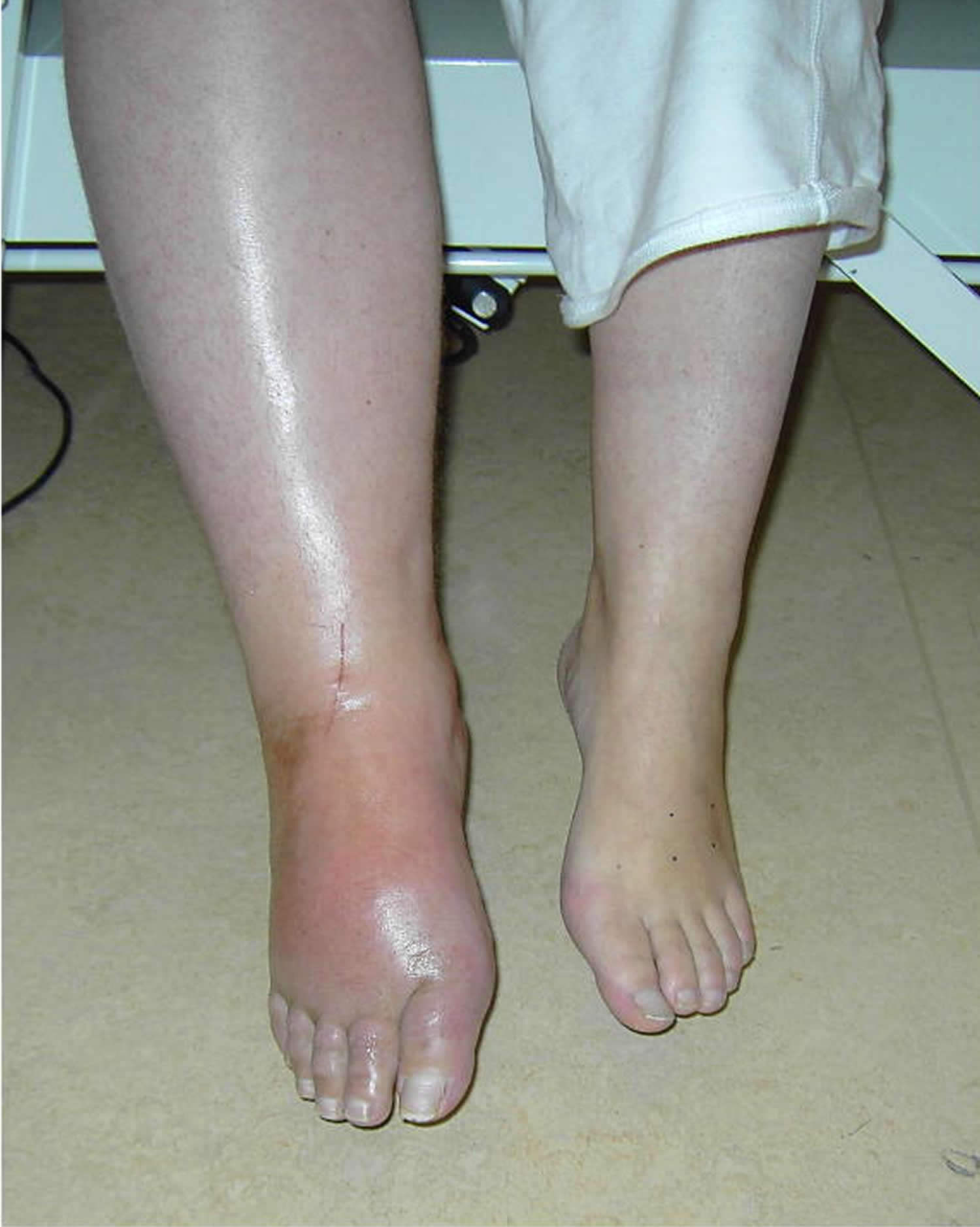 What is Zudecks syndrome