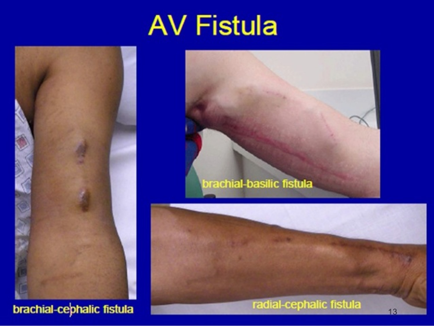 How to Diagnose a Fistula photo