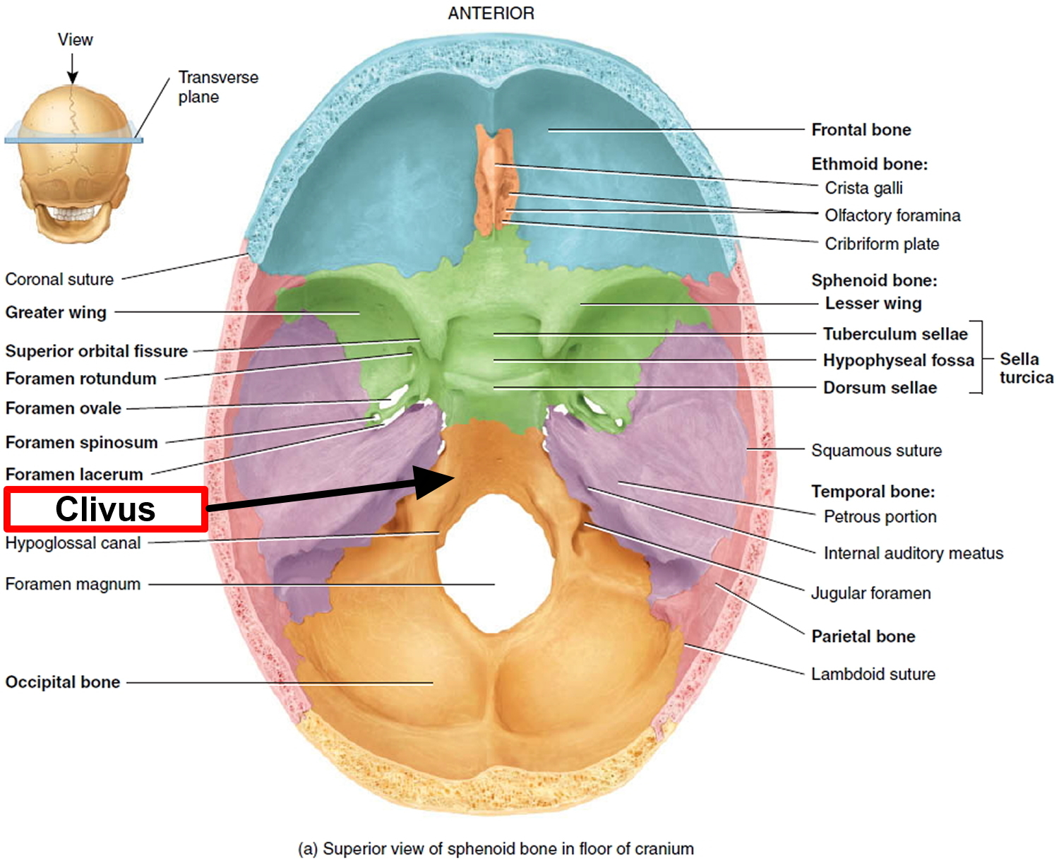 Chordoma Cancer - Causes, Symptoms, Life Expectancy, Treatment