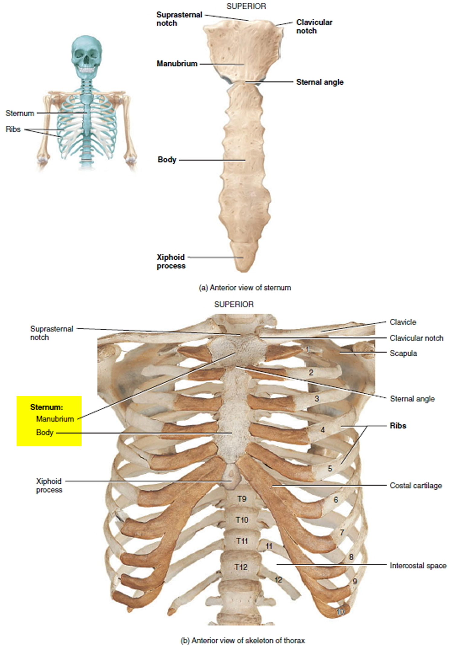 Costochondritis causes symptoms locations duration treatment sternum and chest wall pooptronica Gallery