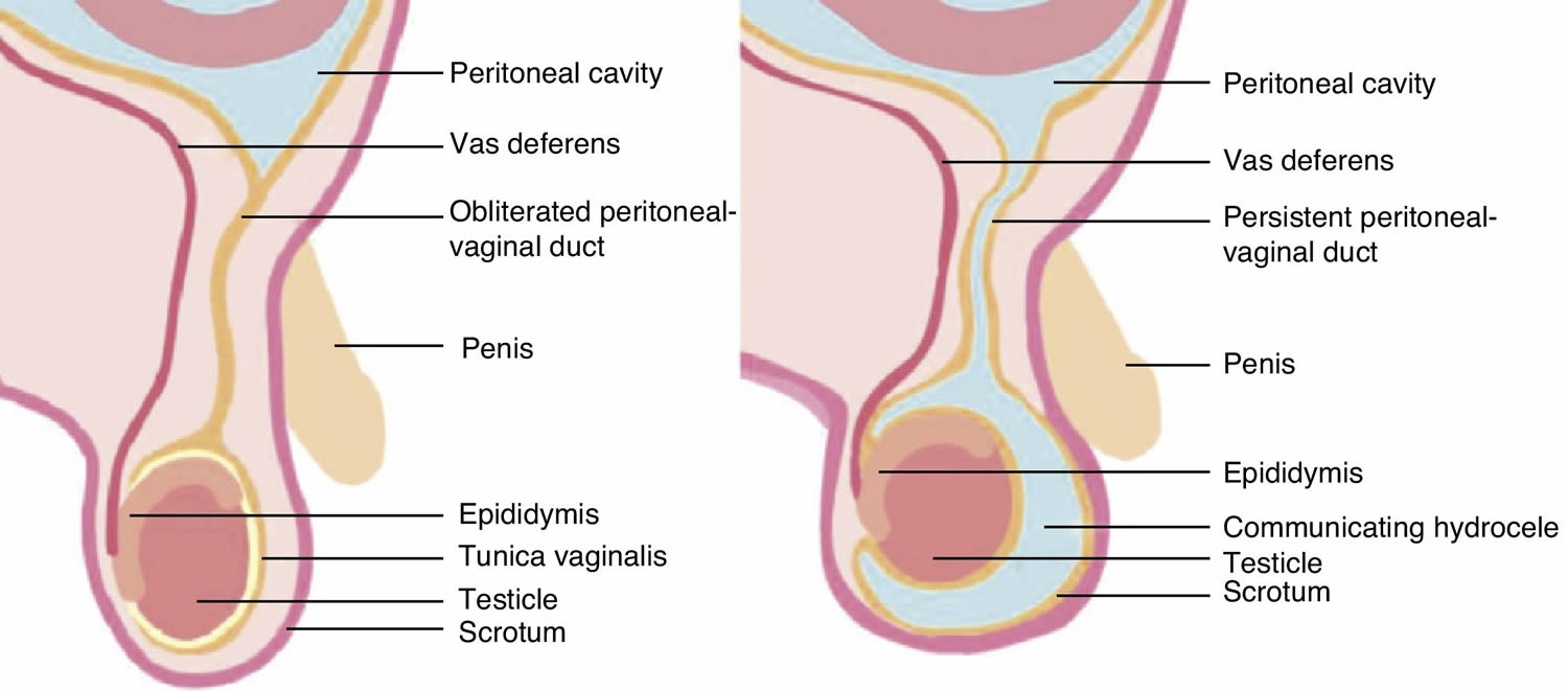 Hydrocele  Symptoms and causes  Mayo Clinic