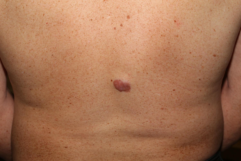 Dermatofibrosarkooma