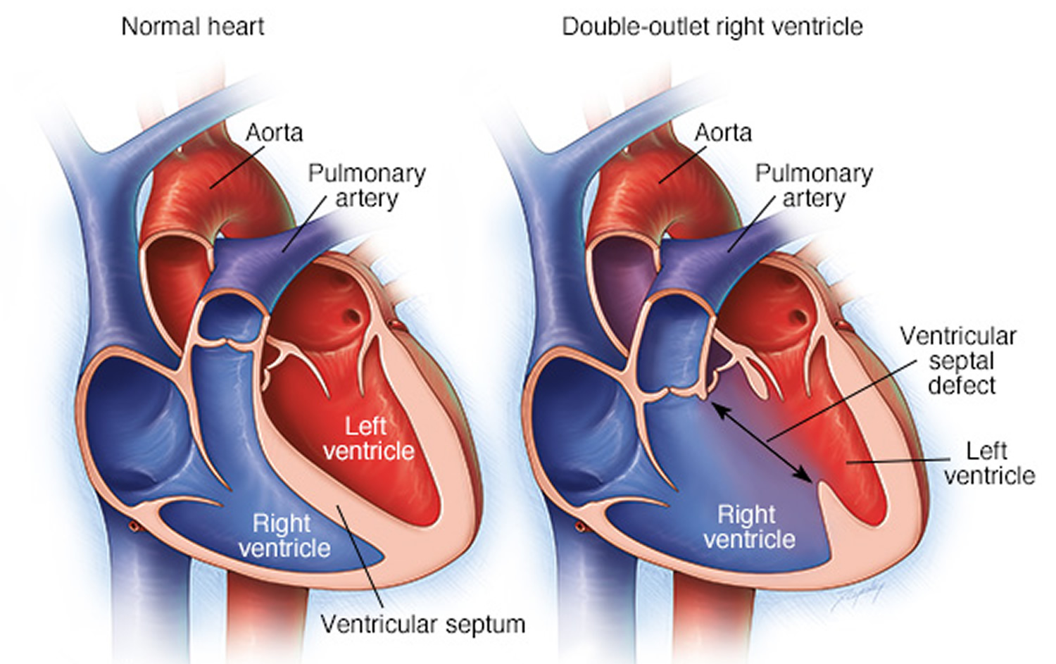 Double Outlet Right Ventricle - Repair, Surgery & Survival Rate
