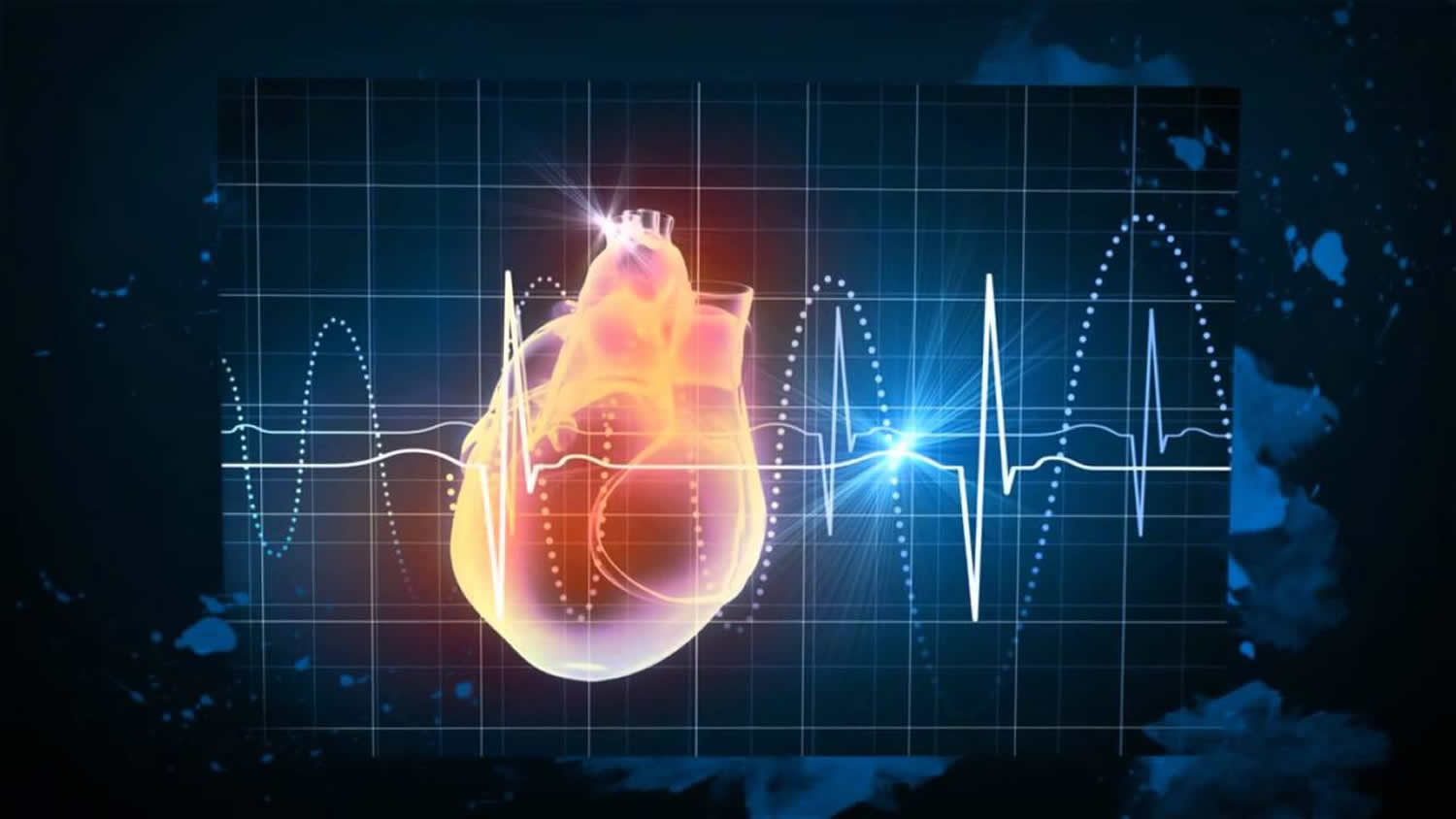 Ectopic Heartbeat Causes Symptoms Diagnosis Treatment
