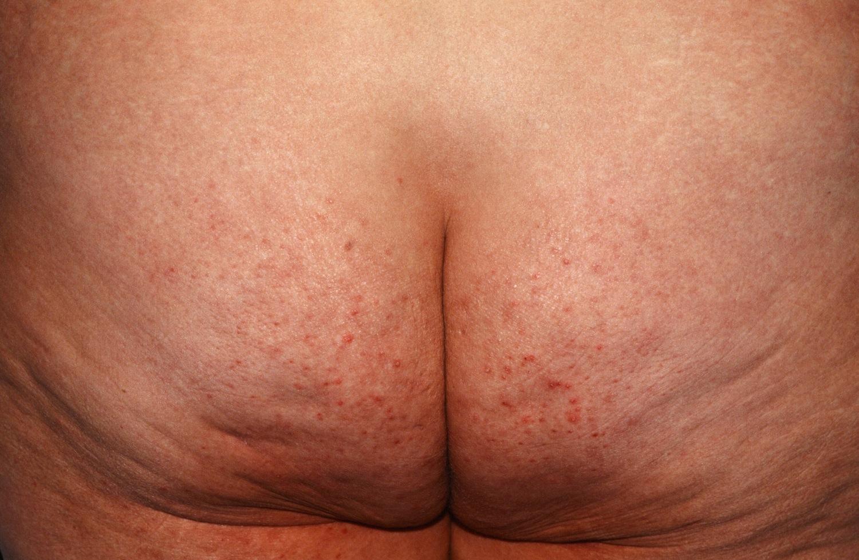 Folliculitis Causes Signs Symptoms How To Get Rid Of Folliculitis