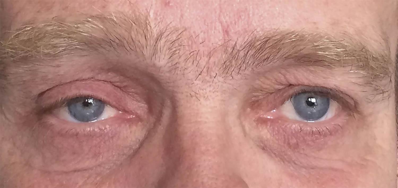 horner syndrome 1