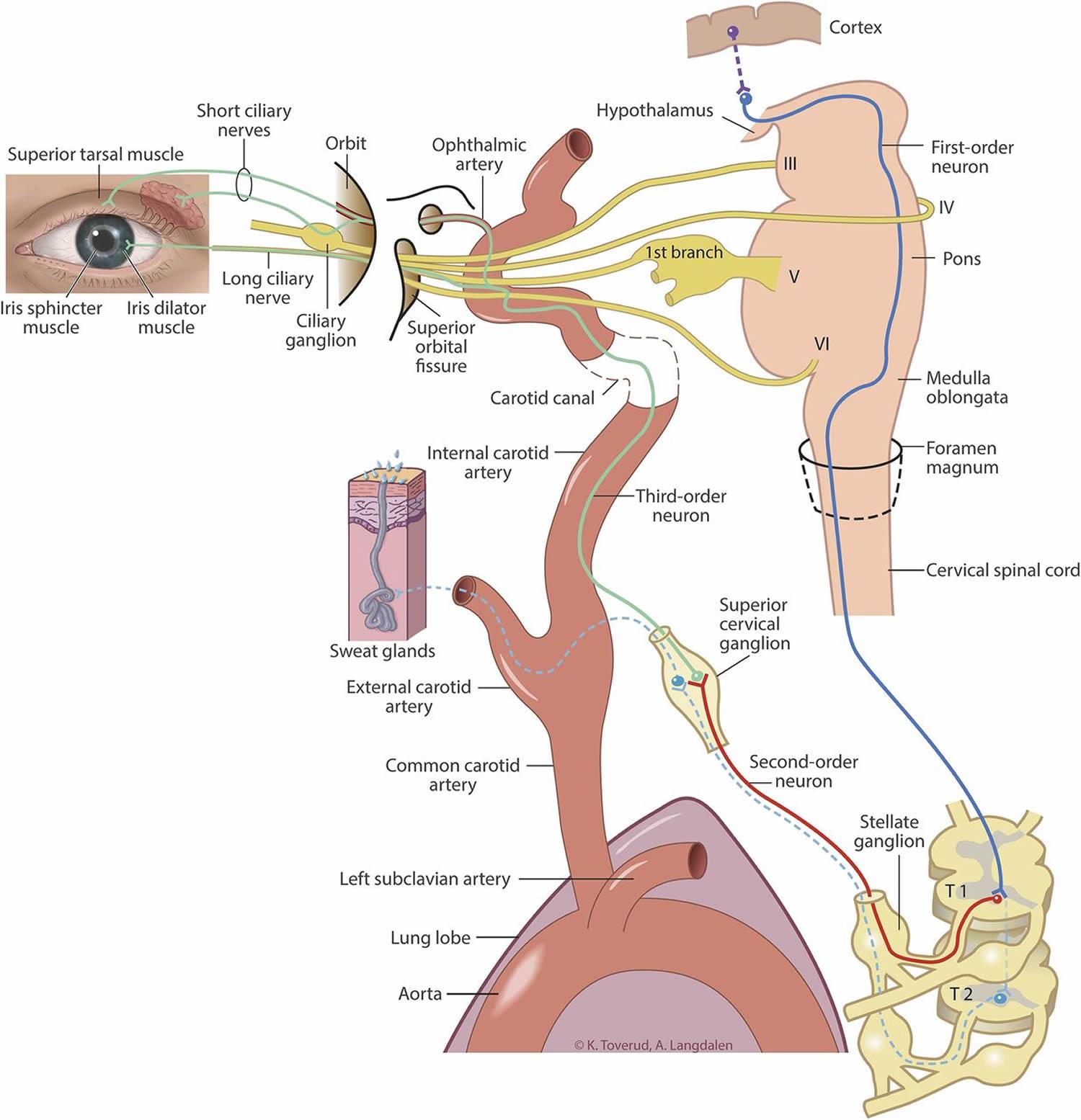 horner's syndrome sympathetic nerves