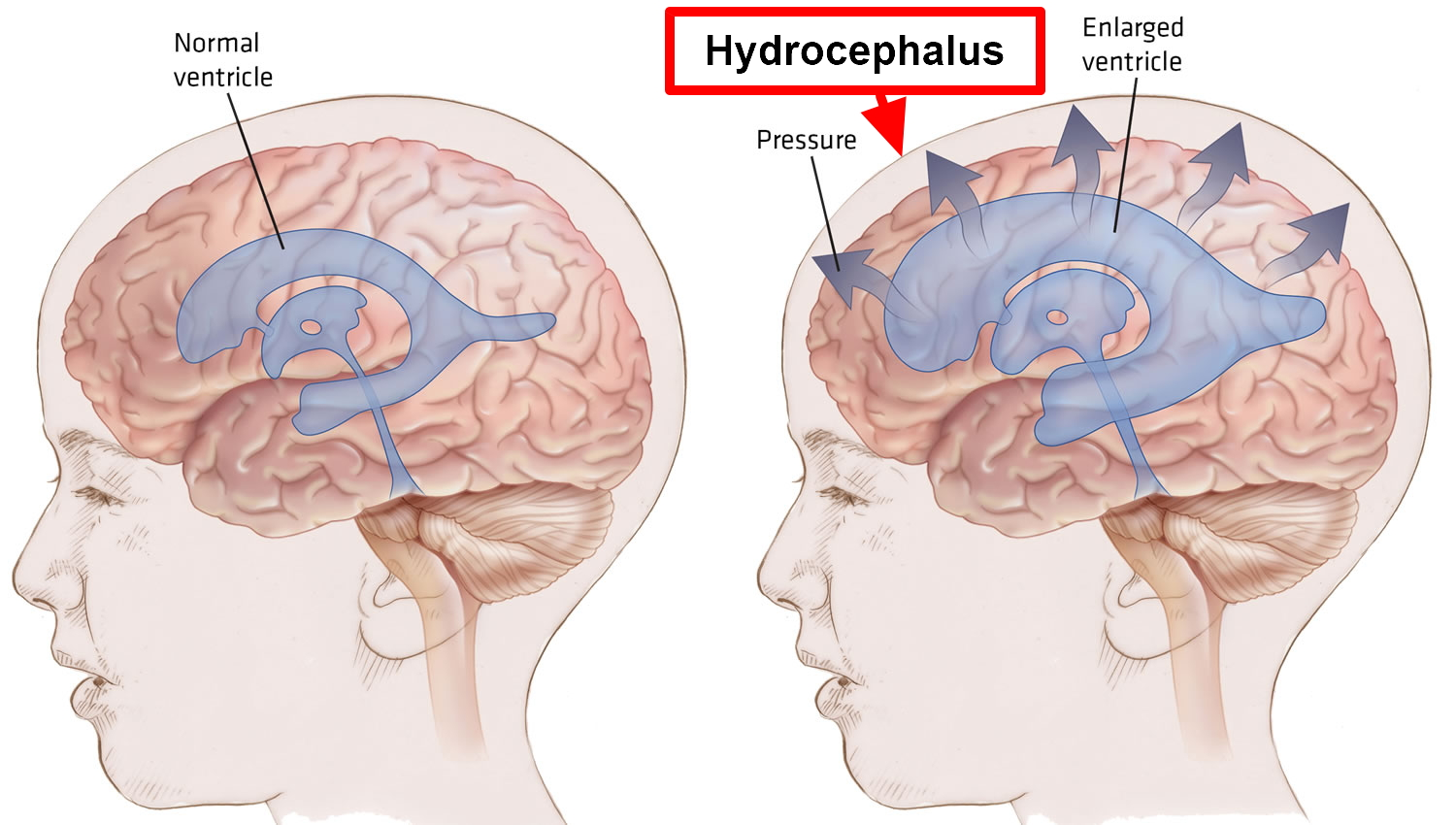 Hydrocephalus in adult