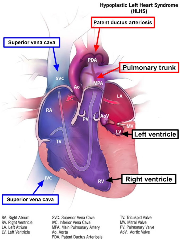 Hypoplastic Left Heart Syndrome - Causes, Prognosis ...