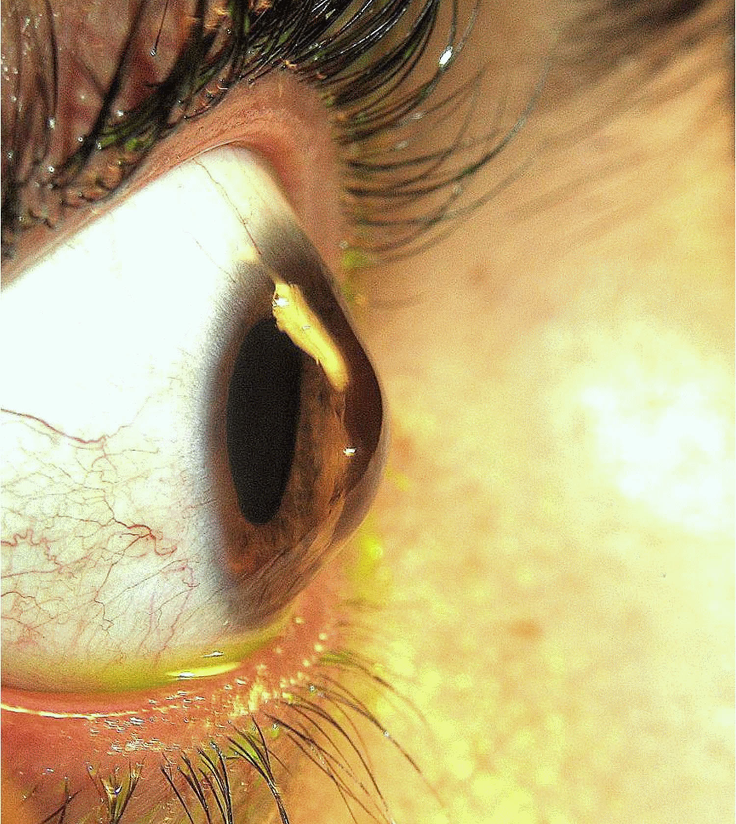 Corneal Hydrops Keratoconus - Causes, ...