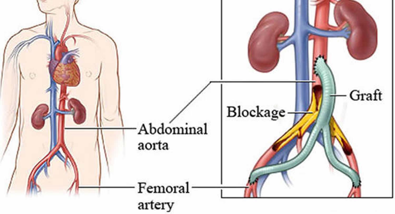 Lower Limb Bypass Surgery