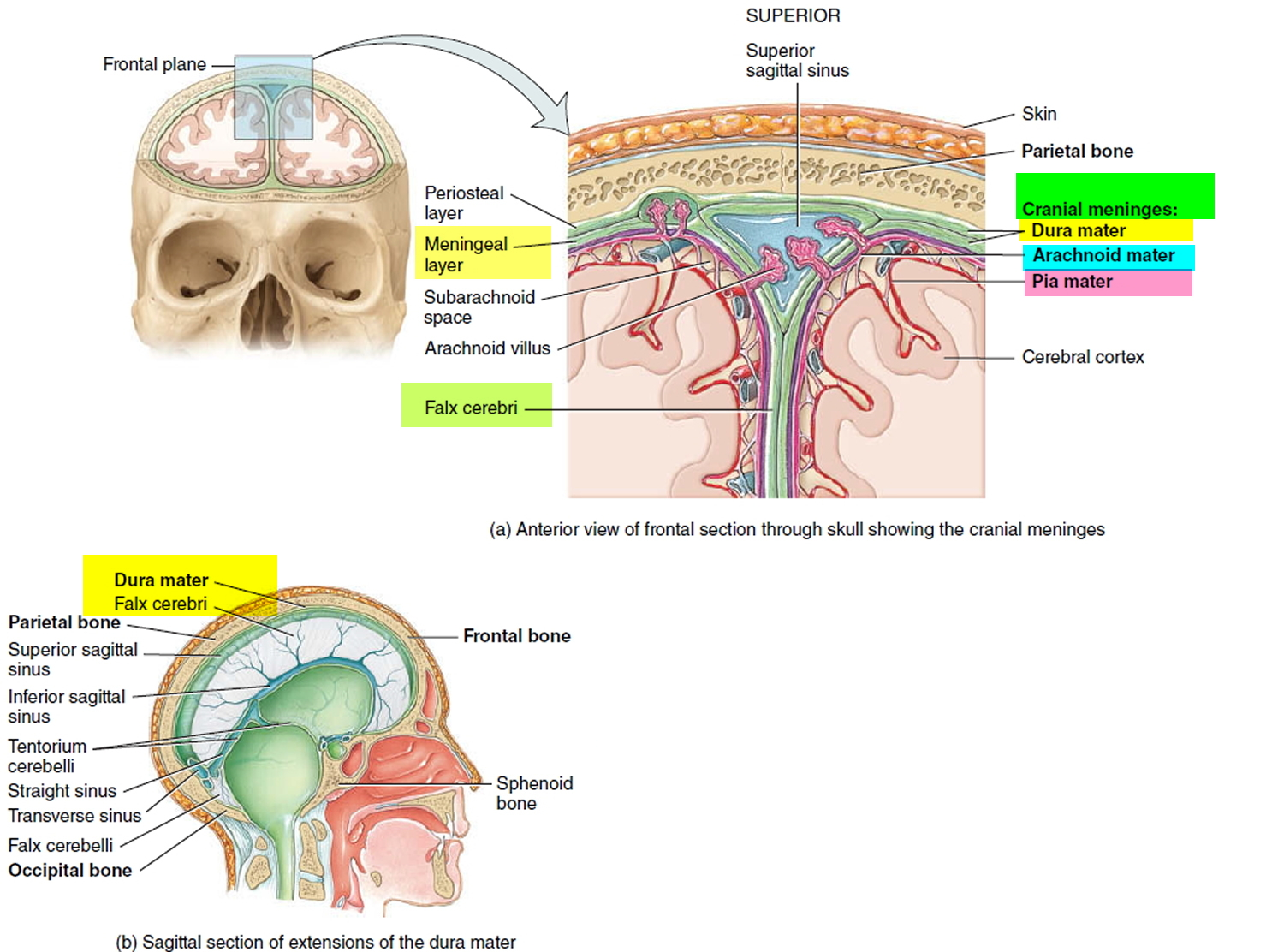 Meningioma Brain Tumor - Causes, Symptoms, Survival Rate, Treatment