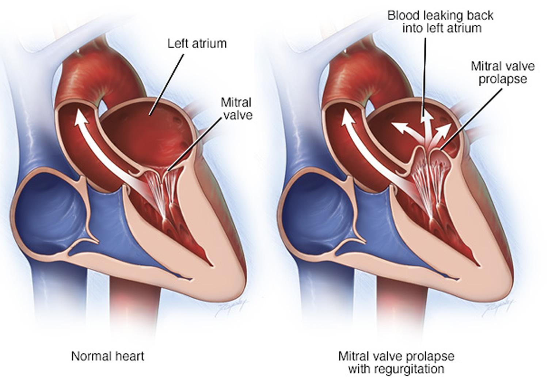 Mitral Valve Prolapse - Causes, Symptoms, Diagnosis, Treatment