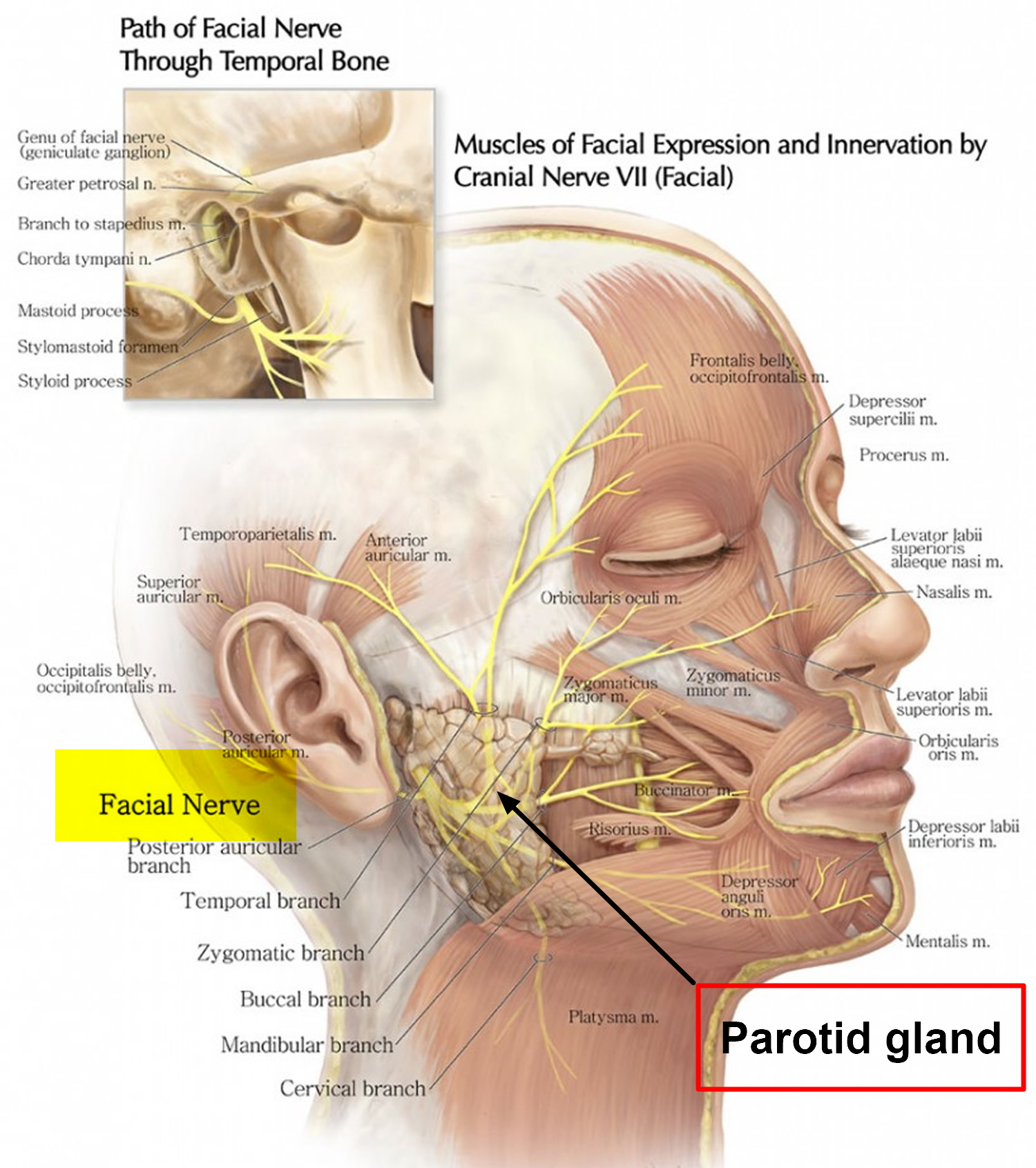 Parotidectomy and facial