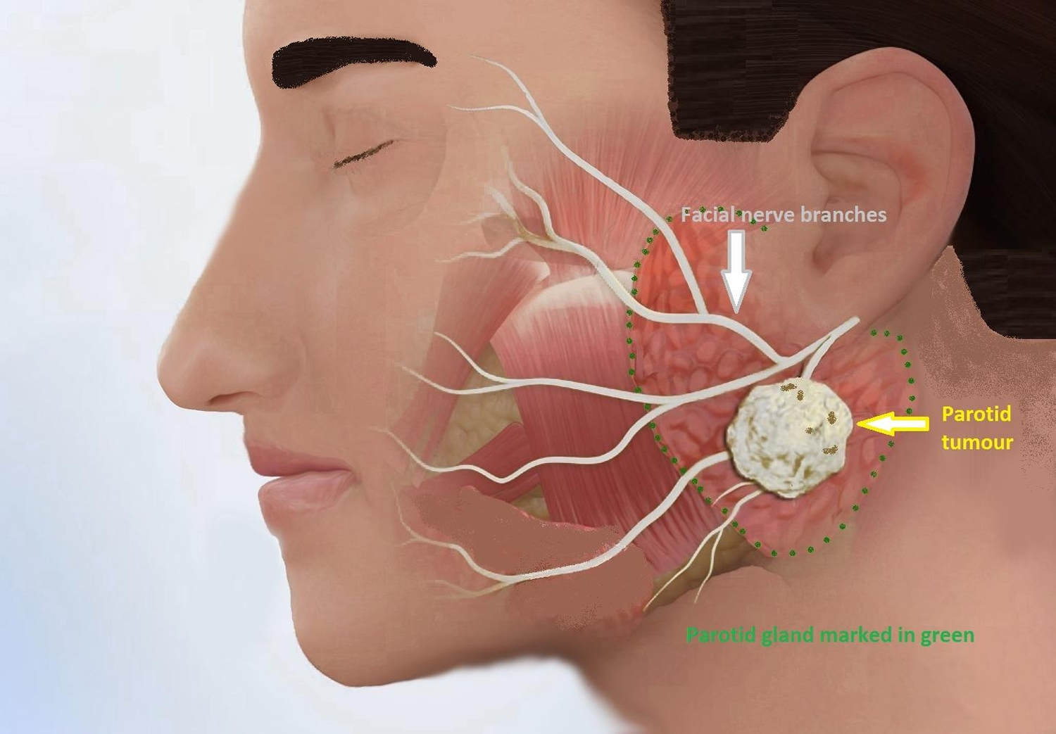 Parotid Tumor - Causes, Symptoms, Diagnosis, Surgery