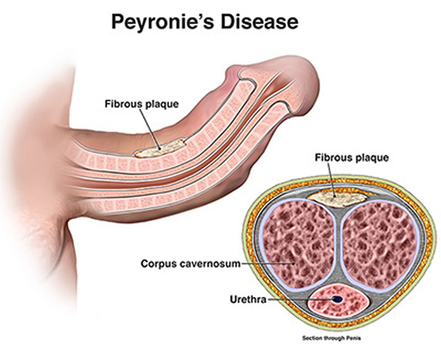 Image result for peyronie's disease
