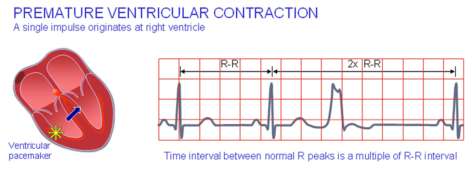 premature ventricular contractions causes symptoms treatment