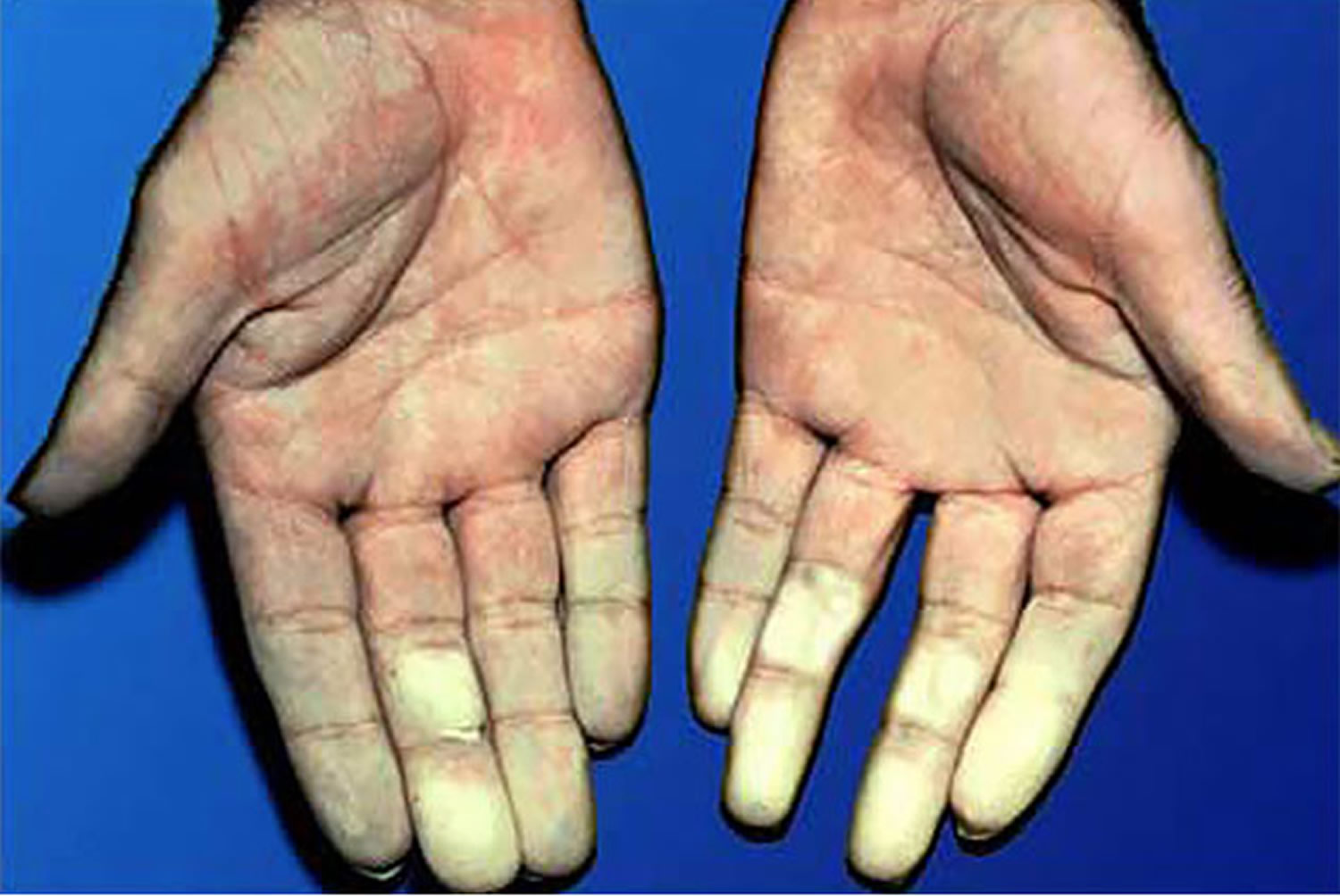 raynaud's disease fingers